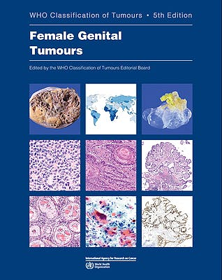 Portada del libro 9789283245049 WHO Classification of Tumours: Female Genital Tumours (WHO Classification of Tumours, Vol. 4)