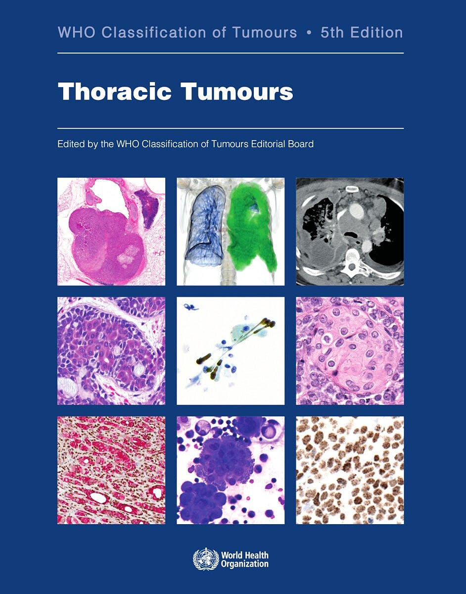 Portada del libro 9789283245063 WHO Classification of Tumours. Thoracic Tumours (WHO Classification of Tumours, Vol. 5)
