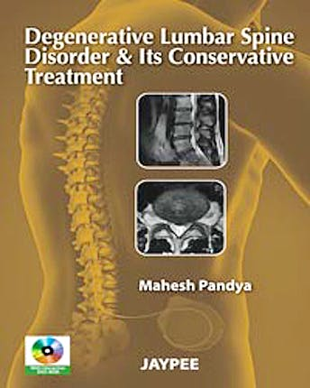 Portada del libro 9789350250020 Degenerative Lumbar Spine Disorder and Its Conservative Treatment + Dvd-Rom
