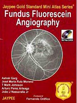 Portada del libro 9789350250051 Fundus Flourescein Angiography (Jaypee Gold Standard Mini Atlas Series)