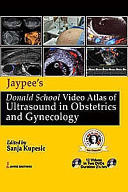 Portada del libro 9789350250969 Video Atlas Ultrasound Obstetrics and Gynecology