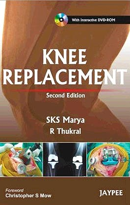 Portada del libro 9789350251683 Knee Replacement + Dvd-Rom