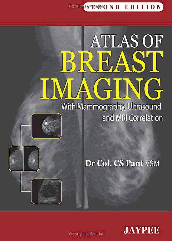 Portada del libro 9789350251874 Atlas of Breast Imaging