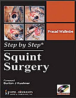 Portada del libro 9789350251966 Step by Step Squint Surgery + Cd