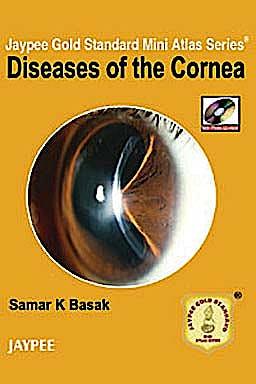 Portada del libro 9789350252611 Diseases of the Cornea (Jaypee Gold Standard Mini Atlas Series)