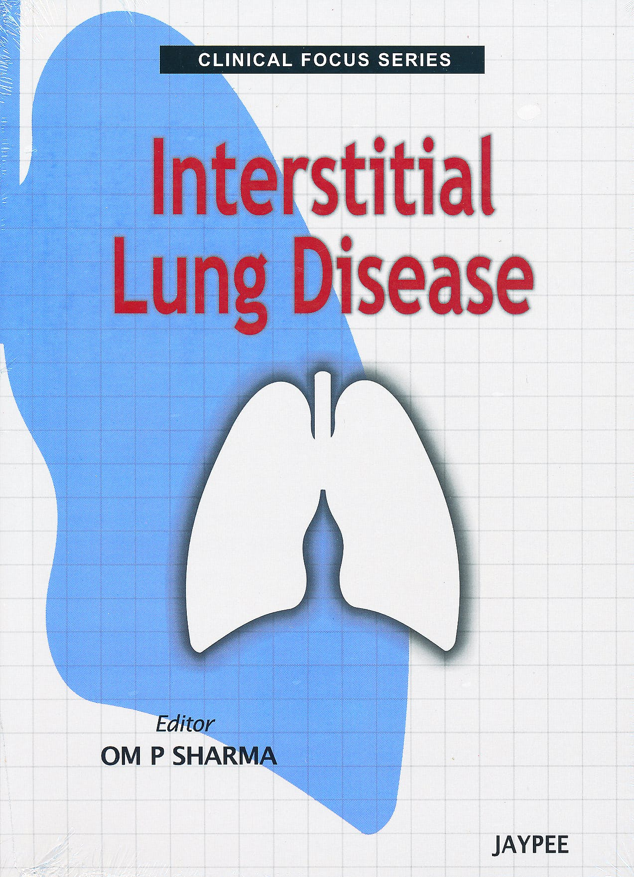 Portada del libro 9789350252680 Interstitial Lung Disease (Clinical Focus Series)