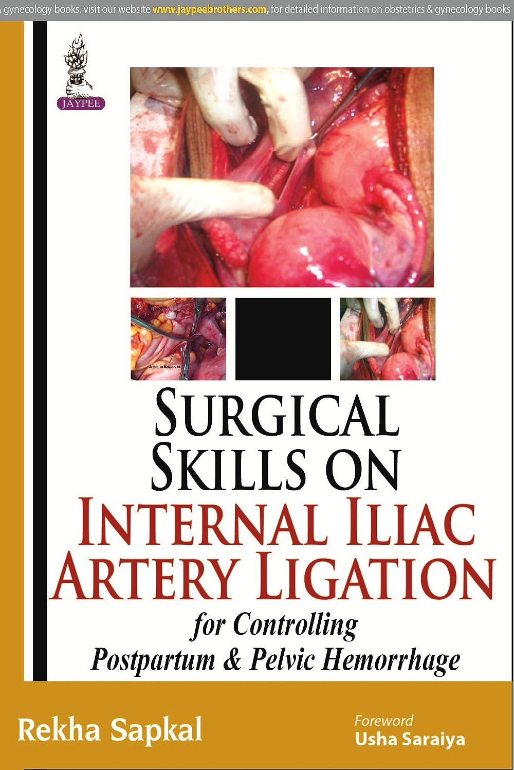 Portada del libro 9789350253786 Surgical Skills on Internal Iliac Artery Ligation for Controlling Postpartum and Pelvic Hemorrhage