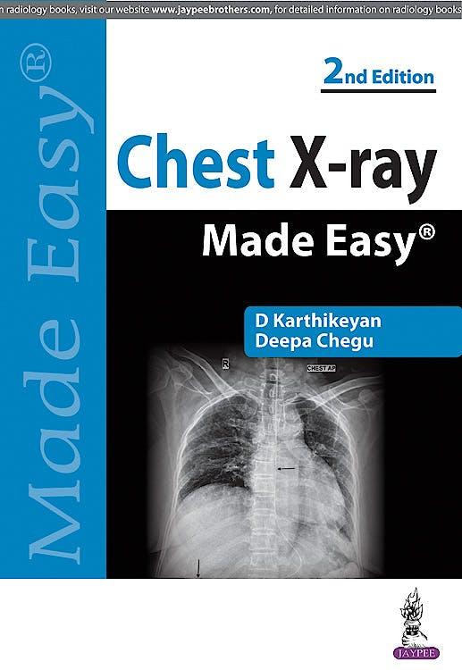 Portada del libro 9789350255636 Chest X-Ray Made Easy