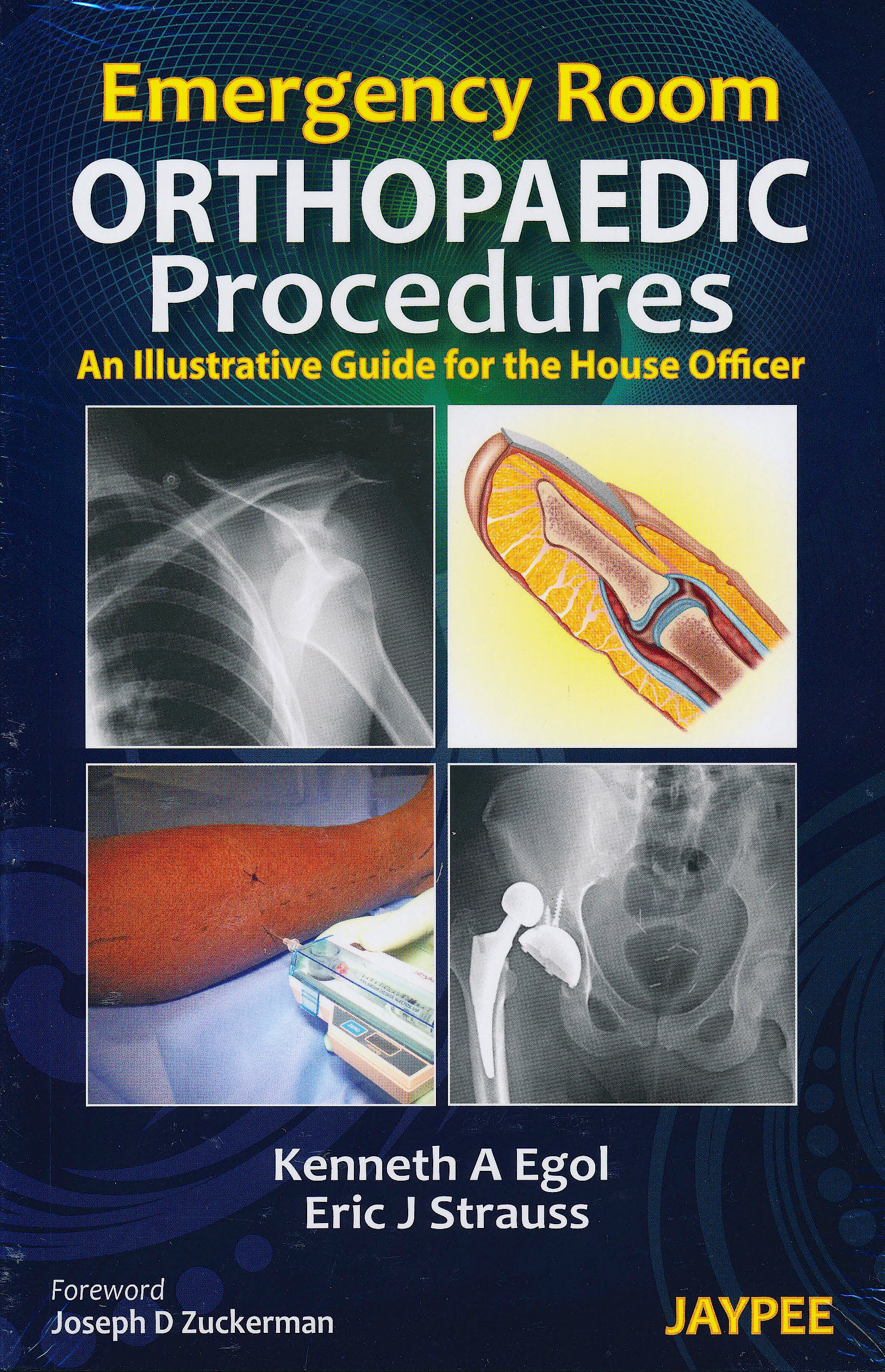 Portada del libro 9789350255704 Emergency Room Orthopaedic Procedures. an Illustrative Guide for the House Officer