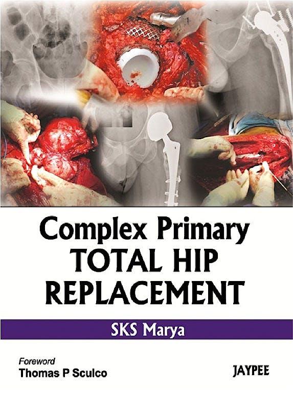 Portada del libro 9789350255841 Complex Primary Total Hip Replacement