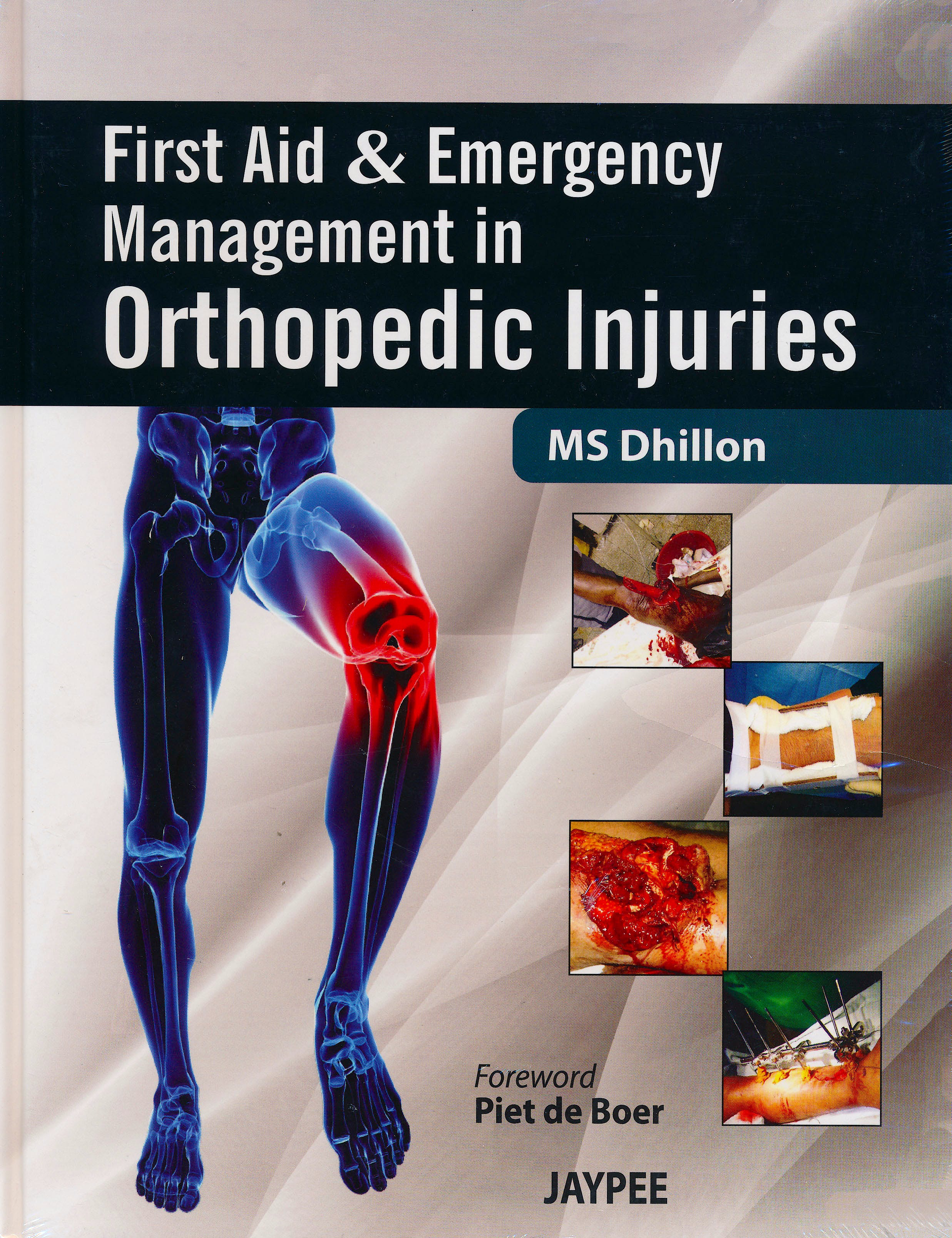 Portada del libro 9789350256459 First Aid and Emergency Management in Orthopedic Injuries