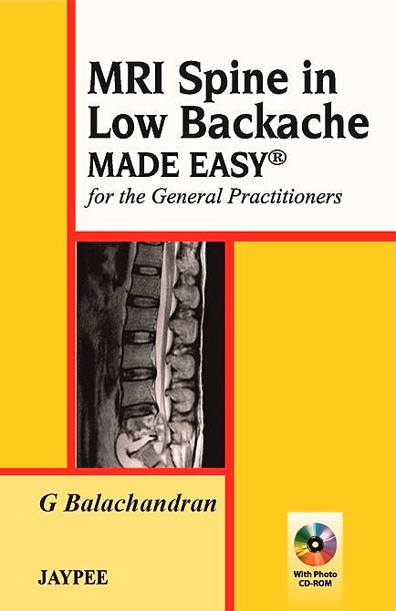 Portada del libro 9789350257142 Mri Spine in Low Backache Made Easy for the General Practitioners + Cd-Rom