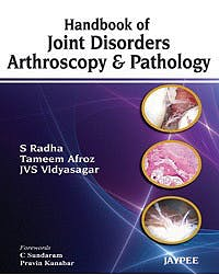 Portada del libro 9789350257234 Handbook of Joint Disorders Arthroscopy and Pathology
