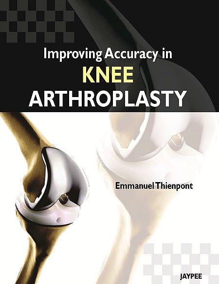 Portada del libro 9789350258705 Improving Accuracy in Knee Arthroplasty