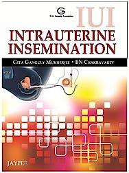 Portada del libro 9789350258866 Iui Intrauterine Insemination