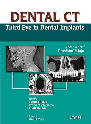 Portada del libro 9789350259108 Dental Ct Third Eye in Dental Implants