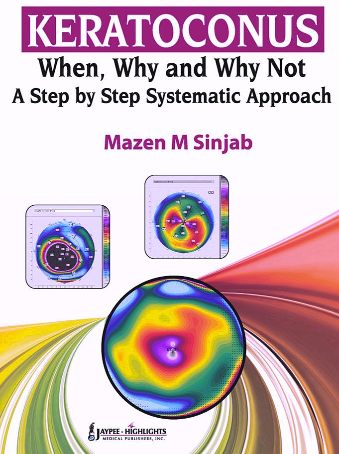 Portada del libro 9789350259221 Keratoconus. When, Why and Why Not. a Step by Step Systematic Approach