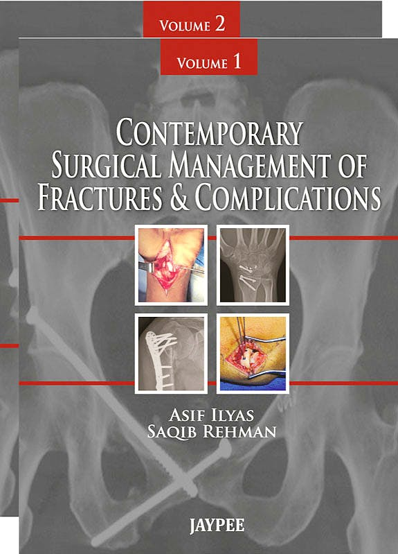 Portada del libro 9789350259641 Contemporary Surgical Management of Fractures and Complications, 2 Vols.