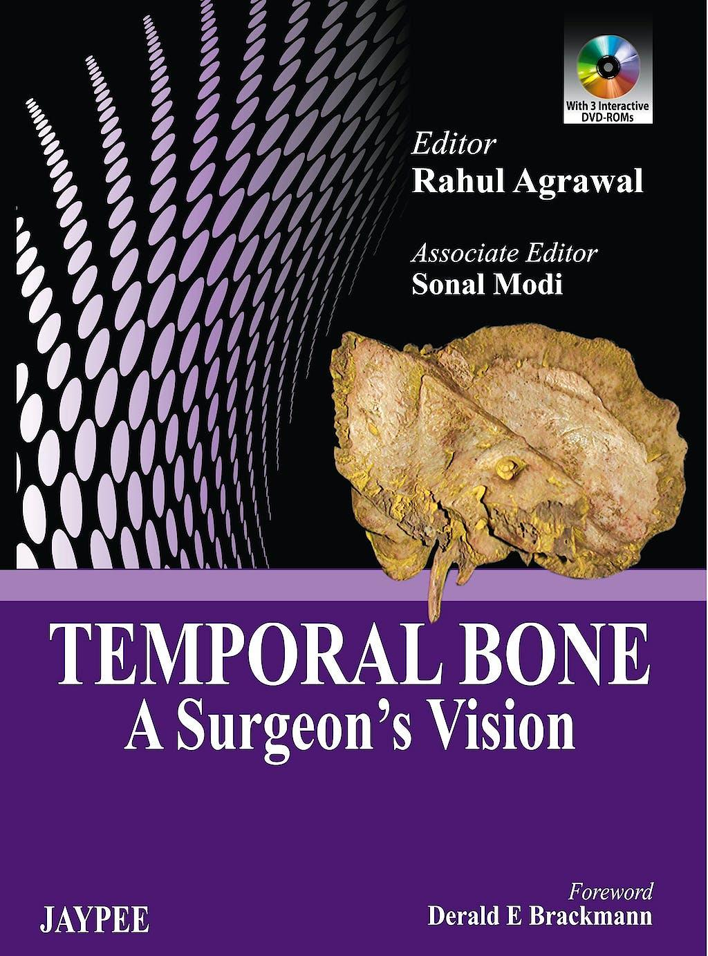 Portada del libro 9789350901748 Temporal Bone. a Surgeon's Vision + Dvd-Rom