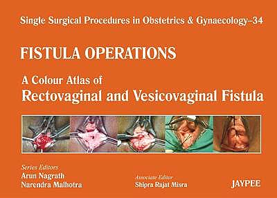 Portada del libro 9789350902929 Single Surgical Procedures in Obstetrics and Gynaecology, Vol. 34: Fistula Operations. a Colour Atlas of Rectovaginal and Vesicovaginal Fistula