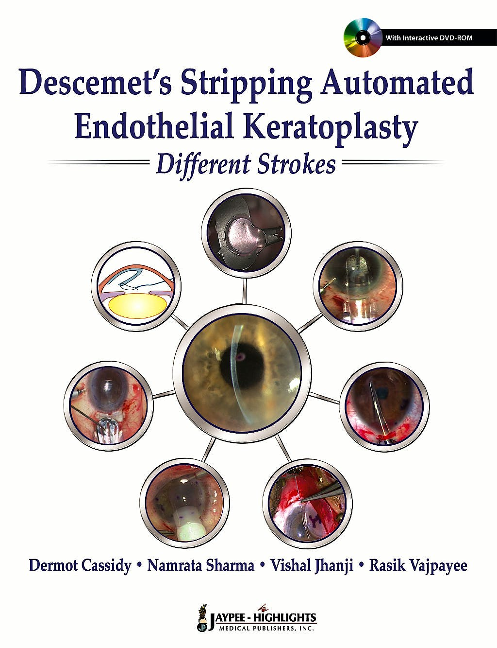 Portada del libro 9789350903285 Descemet's Stripping Automated Endothelial Keratoplasty: Different Strokes + Dvd