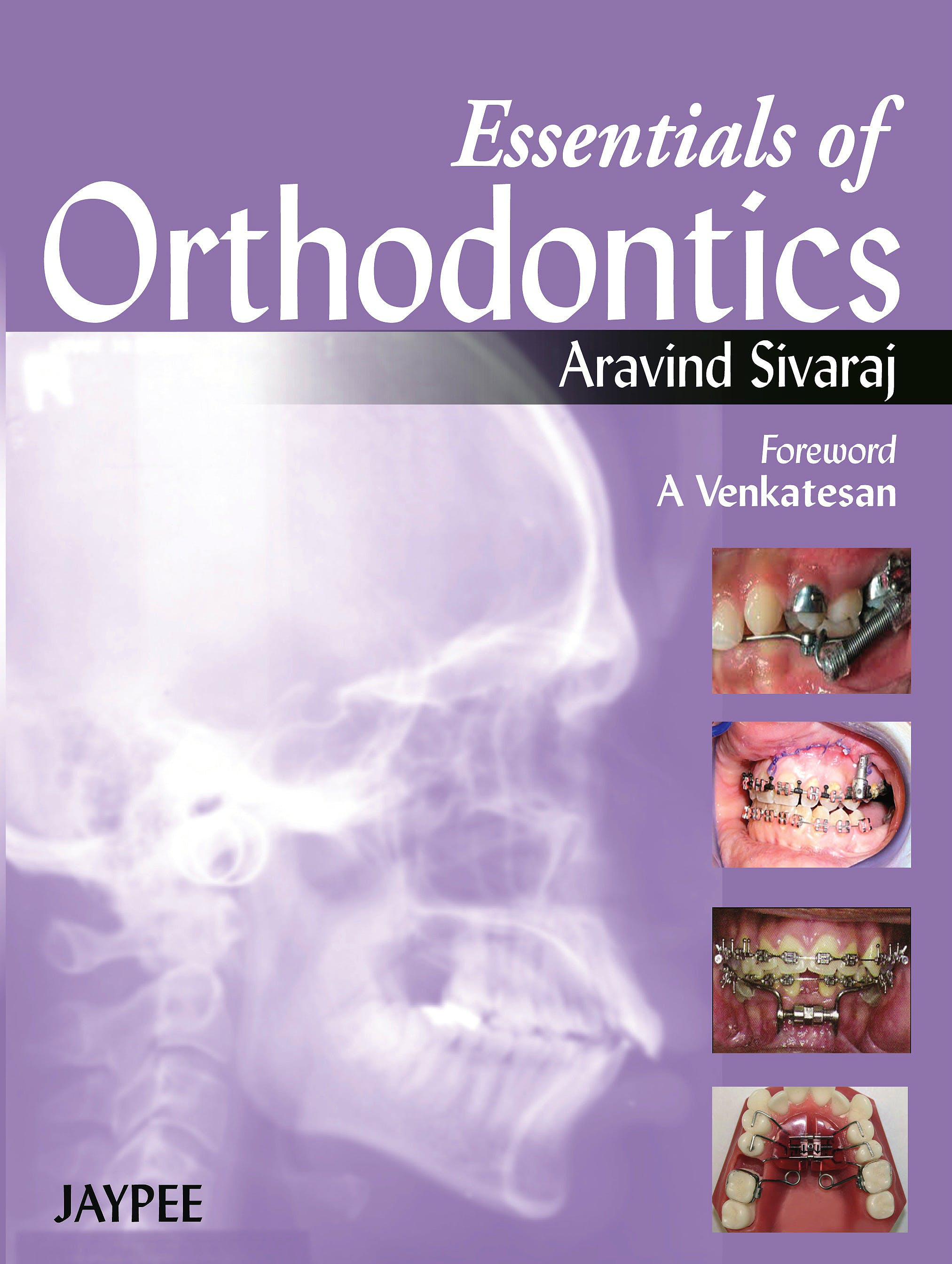 Portada del libro 9789350903292 Essentials of Orthodontics