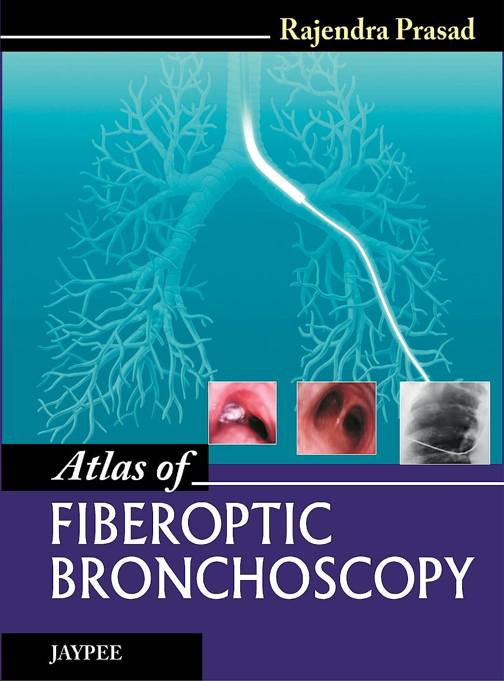 Portada del libro 9789350903407 Atlas of Fiberoptic Bronchoscopy