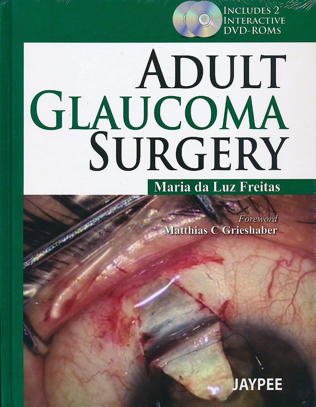 Portada del libro 9789350903551 Adult Glaucoma Surgery + 2 Dvd-Roms