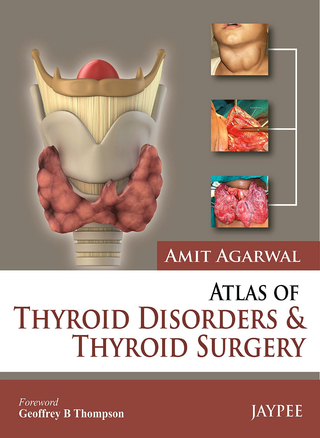 Portada del libro 9789350903988 Atlas of Thyroid Disorders and Thyroid Surgery