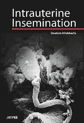 Portada del libro 9789350904039 Intrauterine Insemination