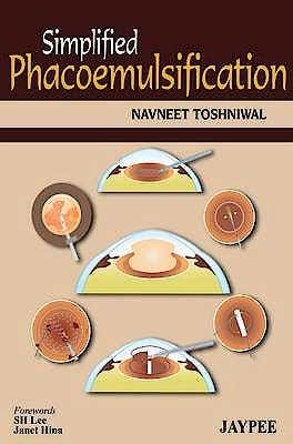 Portada del libro 9789350904428 Simplified Phacoemulsification
