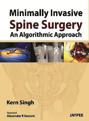 Portada del libro 9789350904848 Minimally Invasive Spine Surgery. an Algorithmic Approach