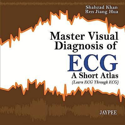Portada del libro 9789350904893 Master Visual Diagnosis of Ecg. a Short Atlas (Learn Ecg through Ecg)