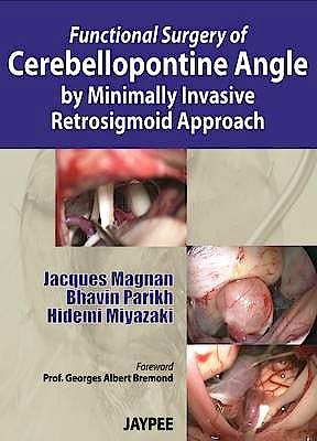 Portada del libro 9789350905258 Functional Surgery of Cerebellopontine Angle by Minimally Invasive Retrosigmoid Approach