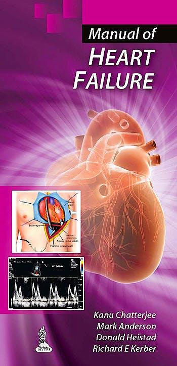 Portada del libro 9789350906309 Manual of Heart Failure