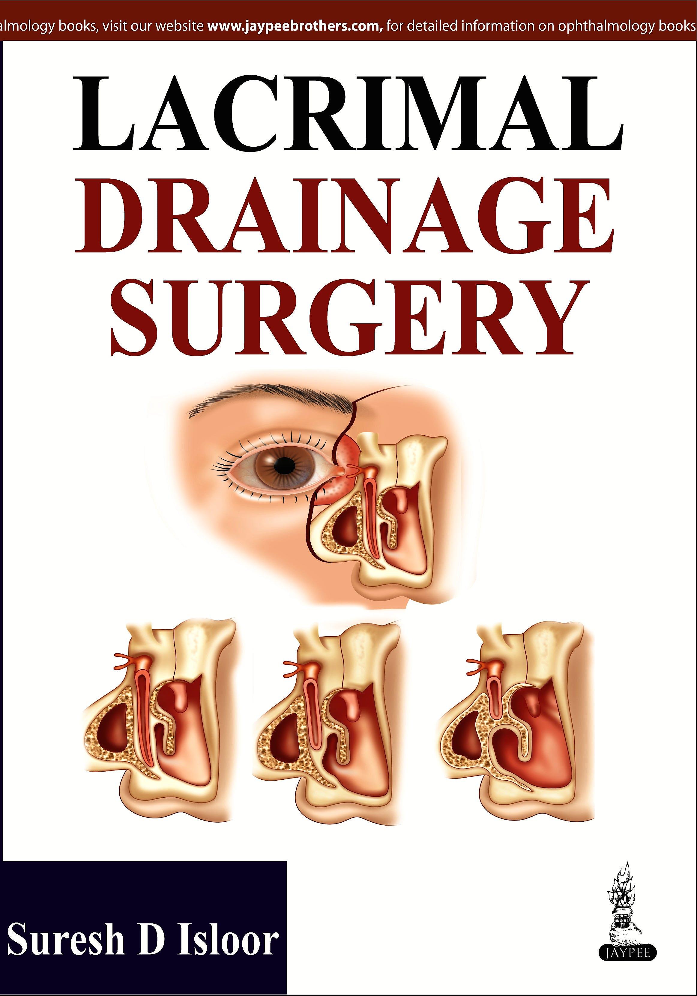 Portada del libro 9789350906507 Lacrimal Drainage Surgery
