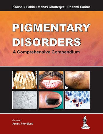 Portada del libro 9789350906583 Pigmentary Disorders. a Comprehensive Compendium