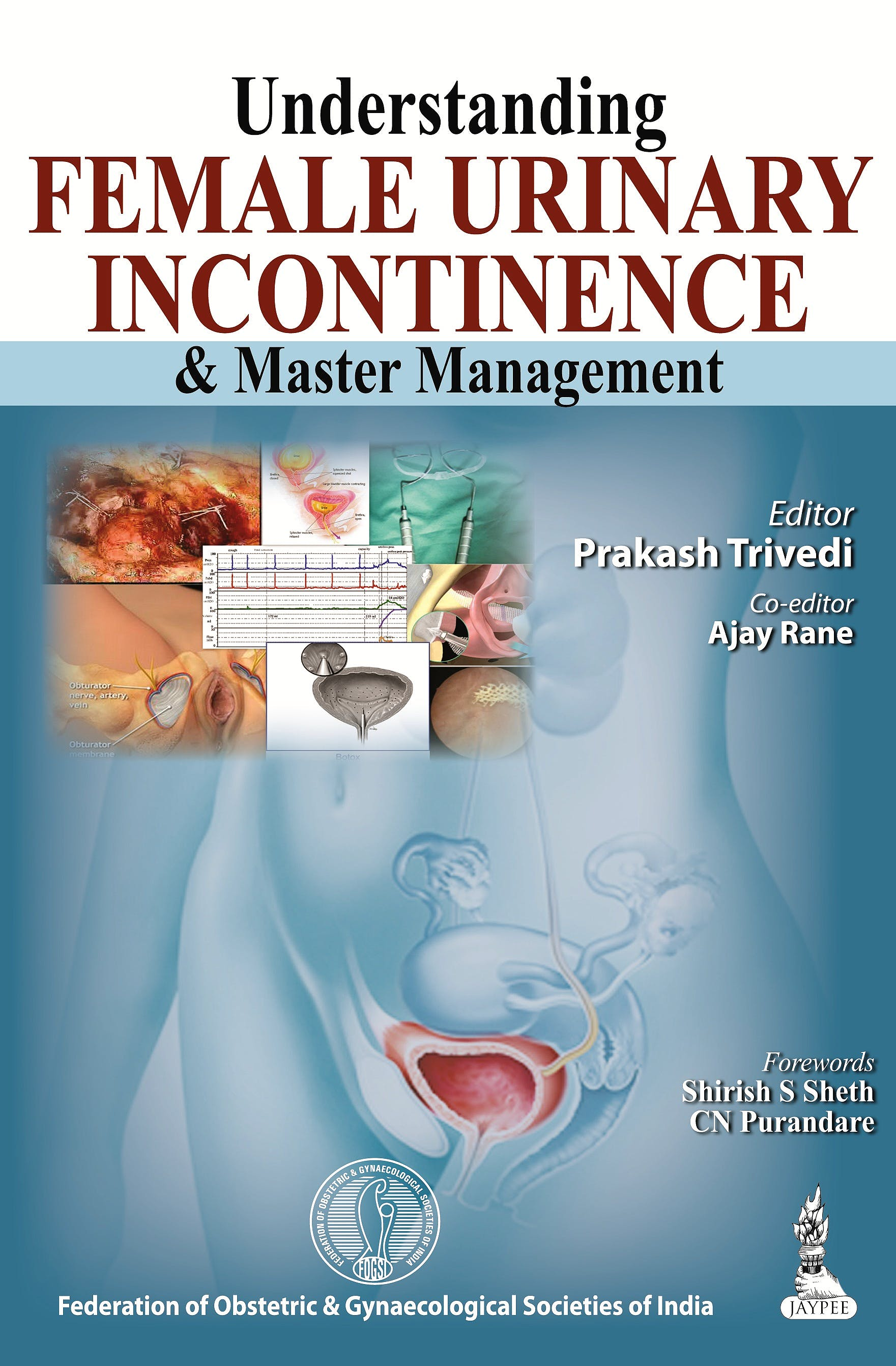 Portada del libro 9789350907344 Understanding Female Urinary Incontinence and Master Management