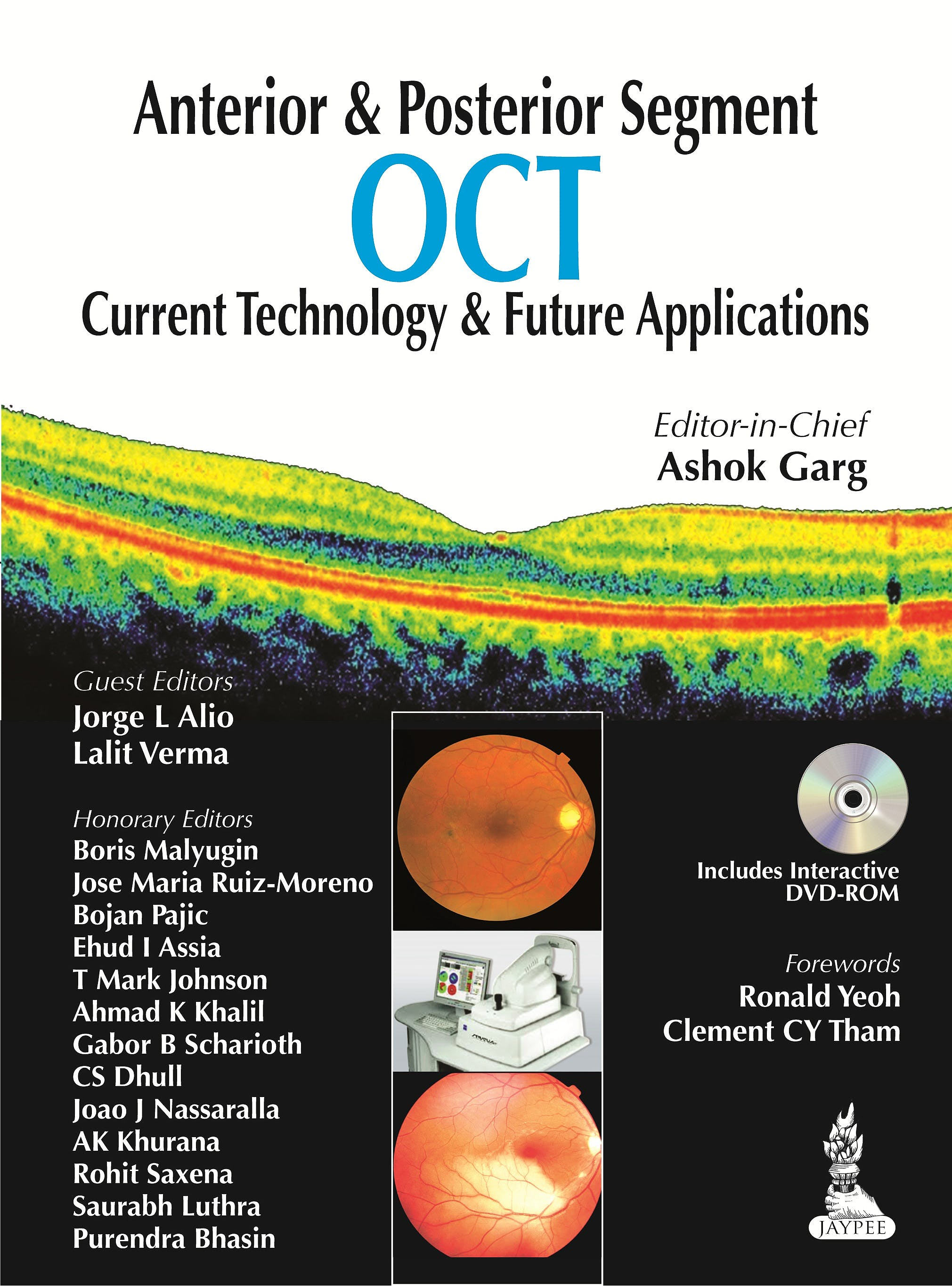 Portada del libro 9789350909782 Anterior and Posterior Segment Oct. Current Technology and Future Applications + Dvd-Rom
