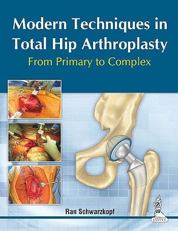 Portada del libro 9789351520825 Modern Techniques in Total Hip Arthroplasty. from Primary to Complex