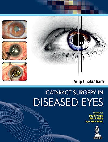 Portada del libro 9789351520924 Cataract Surgery in Diseased Eyes