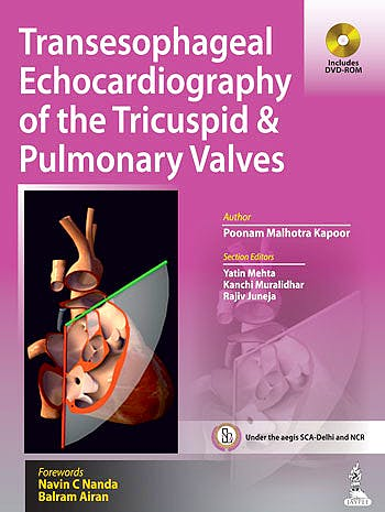 Portada del libro 9789351521297 Transesophageal Echocardiography of the Tricuspid and Pulmonary Valves + Dvd
