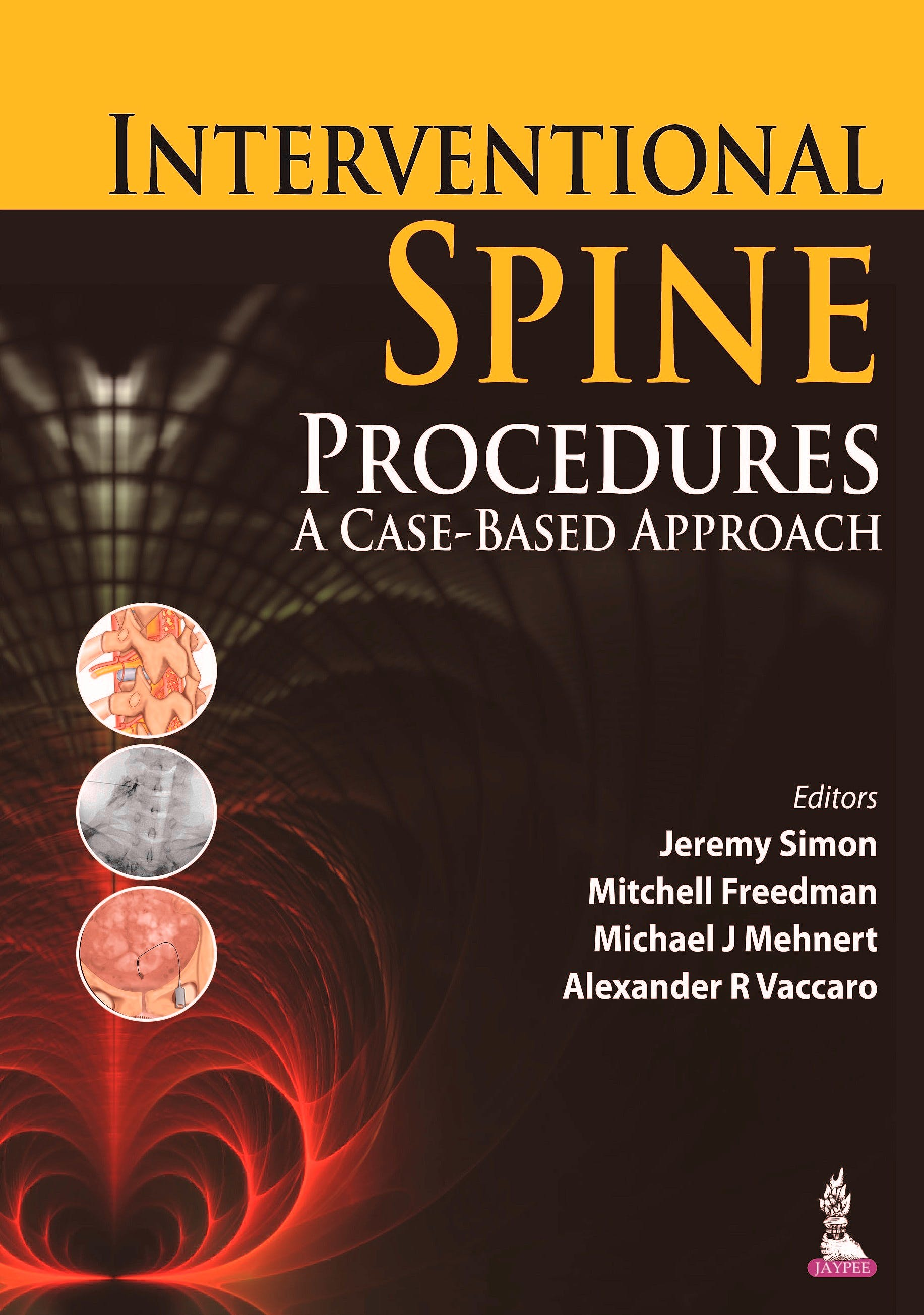 Portada del libro 9789351521693 Interventional Spine Procedures. a Case-Based Approach