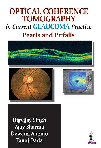 Portada del libro 9789351521884 Optical Coherence Tomography in Current Glaucoma Practice. Pearls and Pitfalls