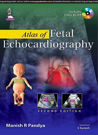 Portada del libro 9789351524762 Atlas of Fetal Echocardiography + Dvd-Rom