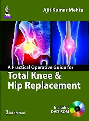 Portada del libro 9789351524823 A Practical Operative Guide for Total Knee and Hip Replacement + Dvd-Rom