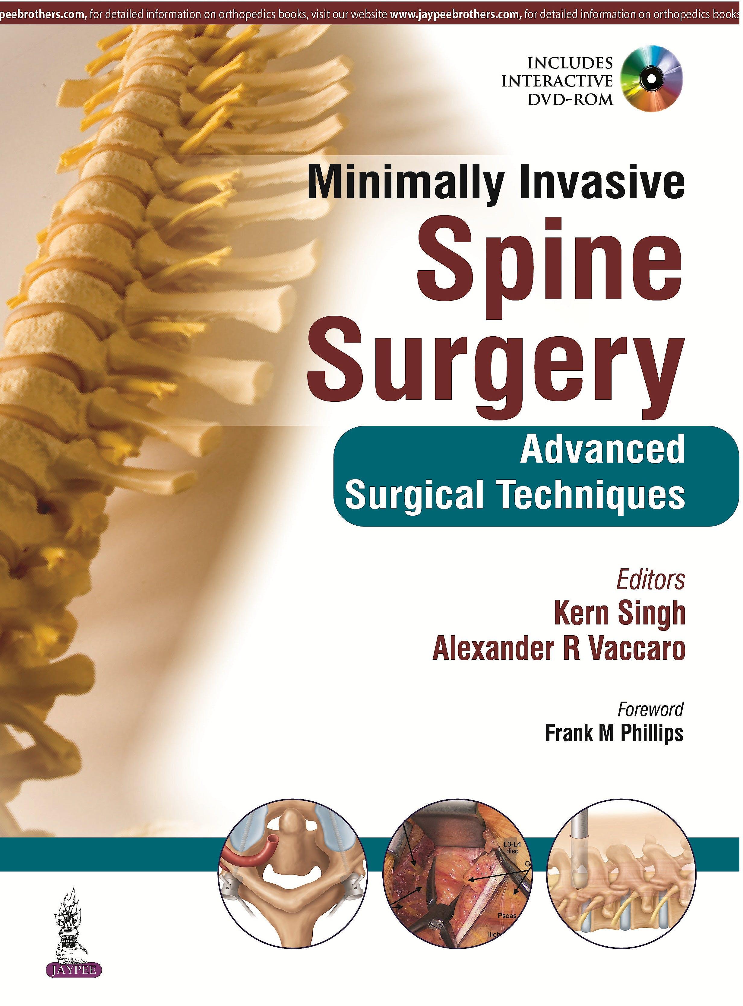 Portada del libro 9789351524939 Minimally Invasive Spine Surgery. Advanced Surgical Techniques + Dvd-Rom
