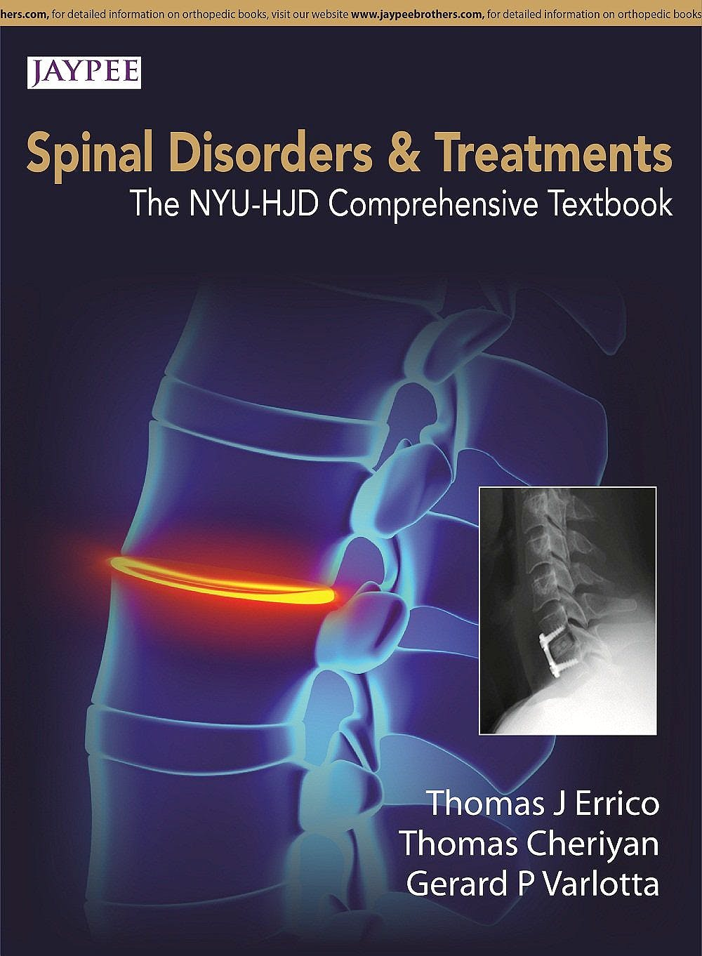 Portada del libro 9789351524953 Spinal Disorders and Treatment. the Nyu-Hjd Comprehensive Textbook Spinal Disorders & Treatment: The Nyu-Hjd Comprehensive Textbook