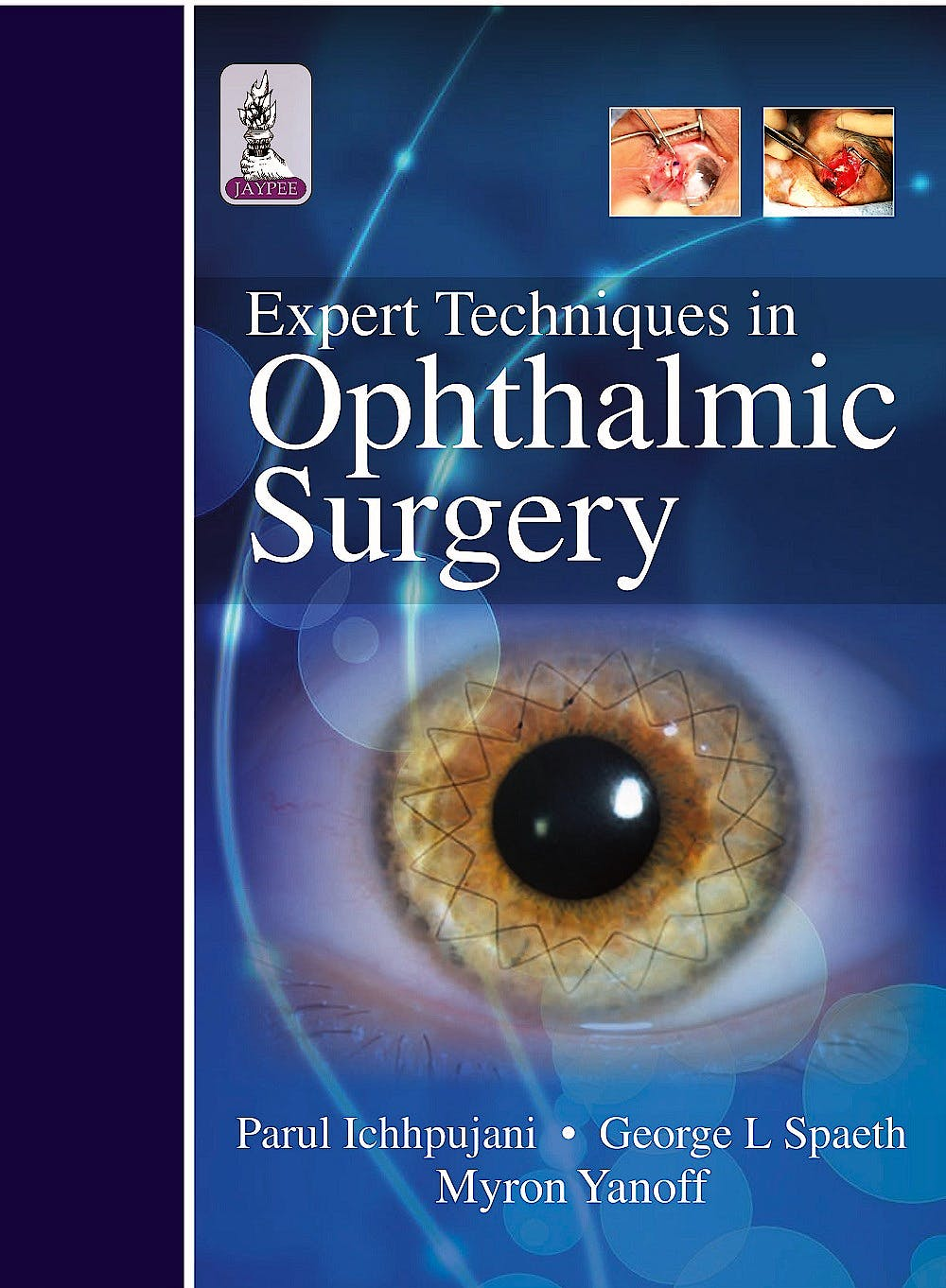 Portada del libro 9789351525004 Expert Techniques in Ophthalmic Surgery