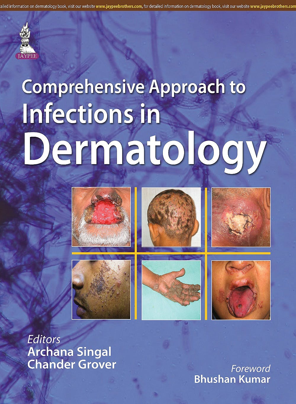Portada del libro 9789351527480 Comprehensive Approach to Infections in Dermatology